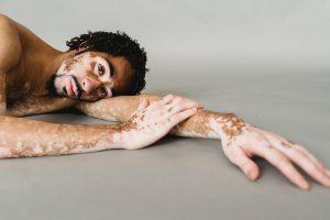 homme, couché au sol, atteint de vitiligo